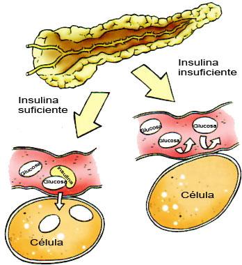 niveles insulina
